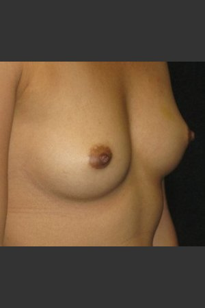 Before Photo for Breast Augmentation - Robert Aycock - Prejuvenation