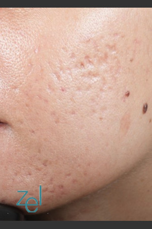 Before Photo for Fractional Resurfacing Acne Scars   - Brian D. Zelickson, M.D. - ZALEA Before & After