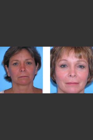 Before Photo for Blepharoplasty 2   - Lori L. Cherup - ZALEA Before & After