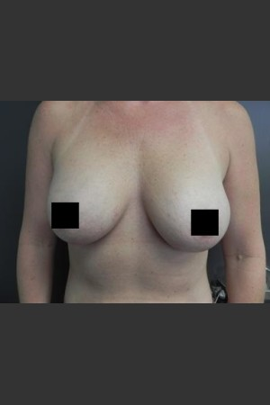 After Photo for Breast Augmentation   - Brian P. Tierney, MD - ZALEA Before & After