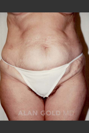 Before Photo for Abdominoplasty 293 - Alan Gold MD - Prejuvenation
