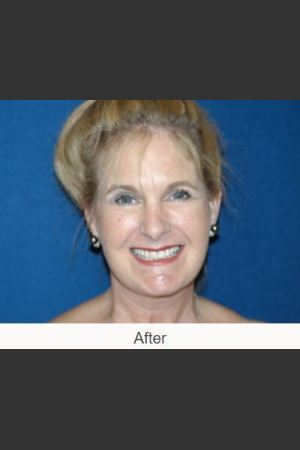 After Photo for Facelift - Case #23 Details   - James N. Romanelli, MD, FACS - ZALEA Before & After