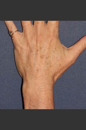 Before Photo for Sun Spot Removal on Hands   - Dr. Sabrina G. Fabi - ZALEA Before & After