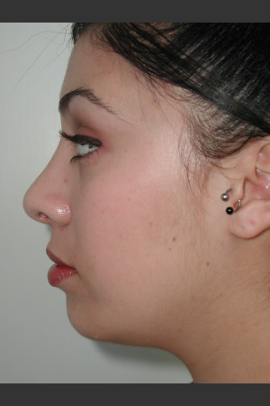 After Photo for Rhinoplasty and Chin Augmentation   - Lawrence Bass MD - ZALEA Before & After