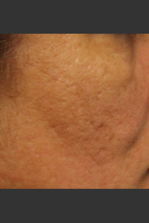 After Photo for Infini Acne Scar Treatment #12   - ZALEA Before & After
