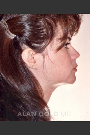 After Photo for Liposuction of Neck 96 Side View   - Alan Gold MD - ZALEA Before & After