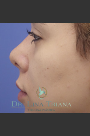 After Photo for Rhinoplasty   - Lina Triana, MD - ZALEA Before & After