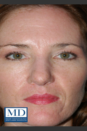After Photo for Photorejuvenation Treatment 110   - Jill S. Waibel, MD - ZALEA Before & After