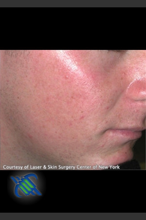 After Photo for Treatment of Facial  Acne Scaring   - Roy G. Geronemus, M.D. - ZALEA Before & After