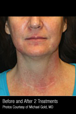 Before Photo for Treatment of Pigmentation & Redness #332 -  - Prejuvenation