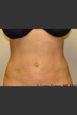 After Photo for Liposuction of Abdomen 8087   - Sanjay Grover MD FACS - ZALEA Before & After