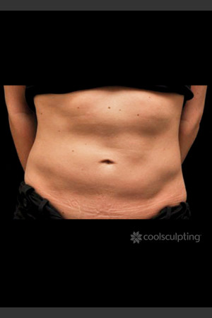 Before Photo for CoolSculpting on Woman's Lower Abdomen   - ZALEA Before & After