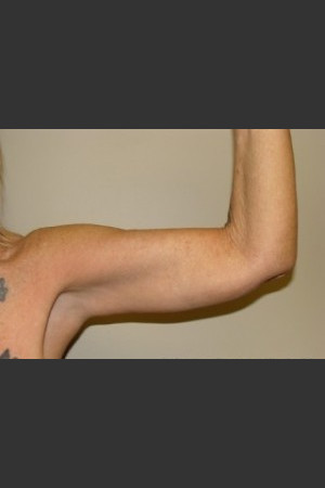 After Photo for Arm Lift 7961   - Sanjay Grover MD FACS - ZALEA Before & After