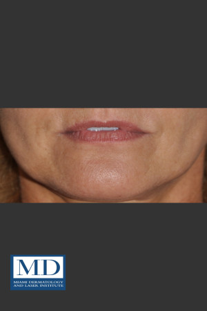 Before Photo for Lip Filler 133   - Jill S. Waibel, MD - ZALEA Before & After