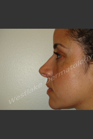 After Photo for Rhinoplasty Treatment of Female Patient - Cameron Craven MD FACS - Prejuvenation