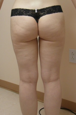 After Photo for Dr. Langdon Liposuction    - Robert Langdon - ZALEA Before & After