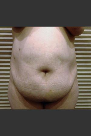 Before Photo for Dr. Palmer Tummy Tuck 02   - Shane Palmer - ZALEA Before & After