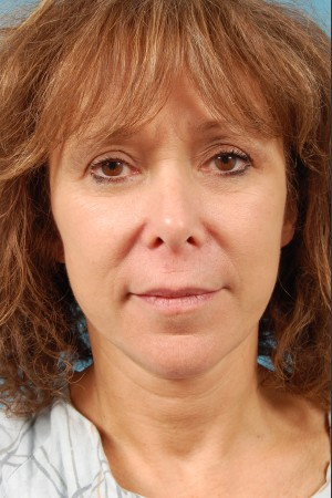 After Photo for Facelift Surgery   - Thomas A. Mustoe, MD, FACS - ZALEA Before & After