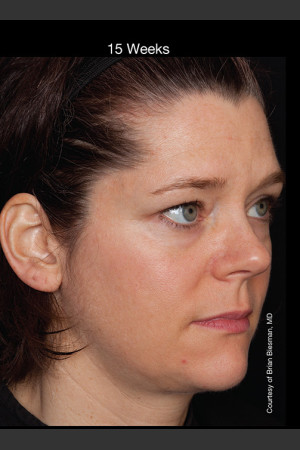 After Photo for Hyperpigmentation - Professional Peel   - Lawrence Bass MD - ZALEA Before & After