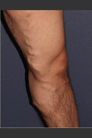 Before Photo for Non-surgical Leg Vein Treatment   - Mitchel P. Goldman M.D. - ZALEA Before & After