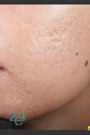 After Photo for Fractional Resurfacing Acne Scars   - Brian D. Zelickson, M.D. - ZALEA Before & After