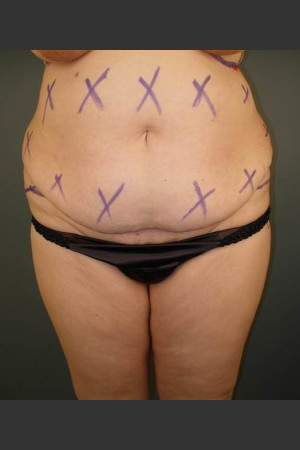 Before Photo for Liposuction #44 Front View   - Dr. David Amron - ZALEA Before & After