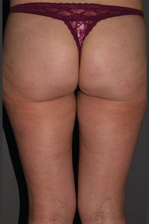 After Photo for Cellfina Case #2   - South Coast Plastic Surgery - ZALEA Before & After