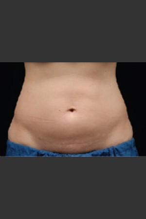 Before Photo for Dr. Langdon CoolSculpting   - Robert Langdon - ZALEA Before & After