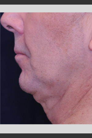 Before Photo for Profound Contour Treatment of Neck   - ZALEA Before & After
