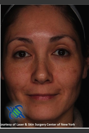 After Photo for Full Face Treatment with Fraxel - Roy G. Geronemus, M.D. - Prejuvenation