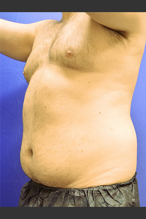 Before Photo for Liposuction Case #1   - Paul C. Dillon, MD - ZALEA Before & After