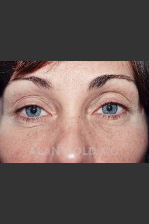 Before Photo for Blepharoplasty 1014   - Alan Gold MD - ZALEA Before & After