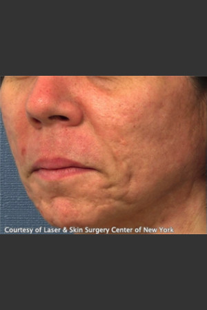 Before Photo for Treatment of Facial  Acne Scars -  - Prejuvenation