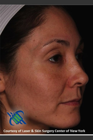 After Photo for Facial Skin Rejuvenation of Face   - Roy G. Geronemus, M.D. - ZALEA Before & After