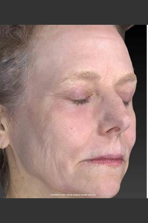 After Photo for Wrinkle and Brown Spot Reduction   - Douglas Wu, M.D. - ZALEA Before & After