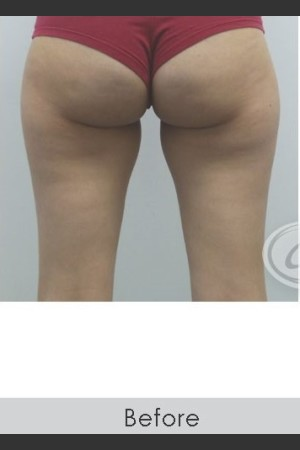 Before Photo for CoolSculpting+ for Banana Roll (Under Buttock Roll)   - Lawrence Bass MD - ZALEA Before & After