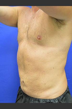 After Photo for Liposuction Case #1   - Paul C. Dillon, MD - ZALEA Before & After