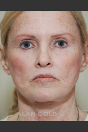 Before Photo for Rhytidectomy (Facelift) 1753   - Alan Gold MD - ZALEA Before & After