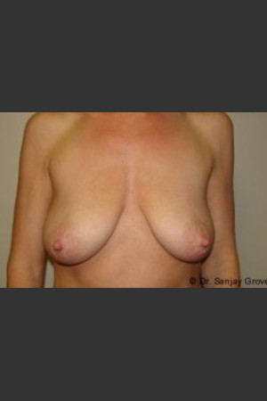 Before Photo for Mastopexy 4939   - Sanjay Grover MD FACS - ZALEA Before & After