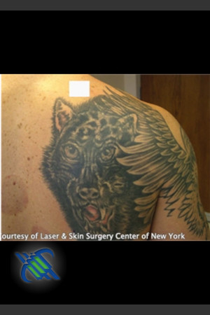 Before Photo for Treatment of Shoulder Tattoo   - Roy G. Geronemus, M.D. - ZALEA Before & After