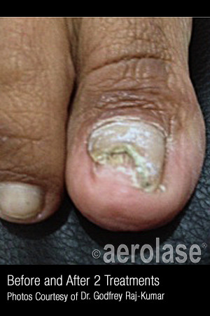 Before Photo for Treatment of Nail Fungus #321   - ZALEA Before & After
