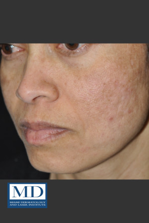After Photo for Melasma Face Treatment 117   - Jill S. Waibel, MD - ZALEA Before & After