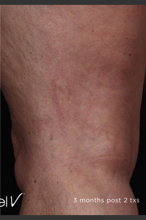 After Photo for Back of Thigh Leg Vein Clearance    - ZALEA Before & After