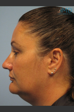 Before Photo for Exilis Skin Tightening of the Lower Face   - Margaret Ann Weiss - ZALEA Before & After