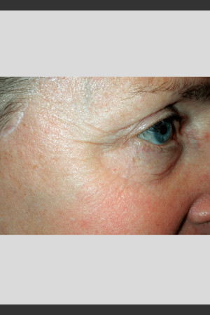 After Photo for Vbeam. Pulsed Dye Laser treatment of wrinkles   - ZALEA Before & After
