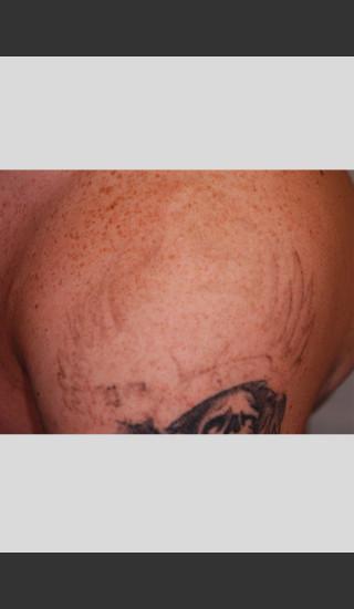 After Photo for PicoWay Tattoo Removal on Shoulder  -  - Prejuvenation