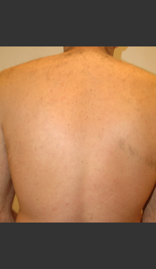 After Photo for Laser Hair Removal - James Newman - Prejuvenation