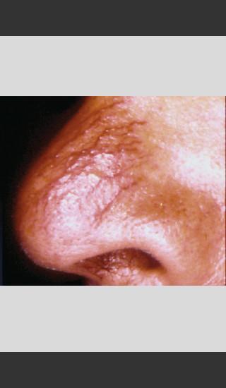 Before Photo for Vbeam Laser Treatment of Nose Veins -  - Prejuvenation