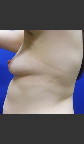 Before Photo for Breast Augmentation Case #1 - Paul C. Dillon, MD - Prejuvenation