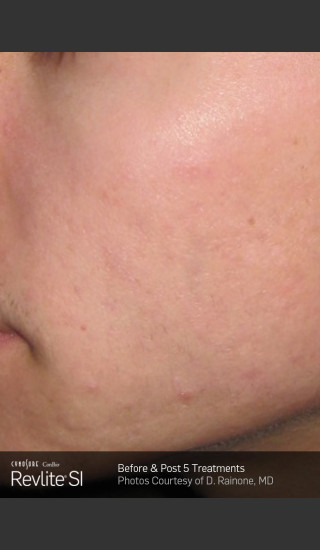 After Photo for Revlite SI Treatment of Facial  Acne Scarring -  - Prejuvenation